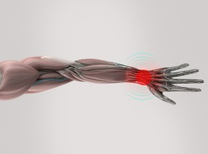 What Causes Carpal Tunnel?
